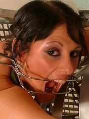 Dental metal gag
